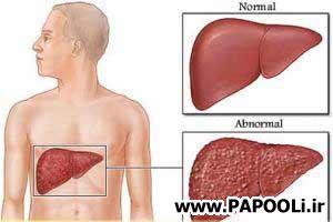 مقاله ای در مورد پیشگیری و درمان کبد چرب